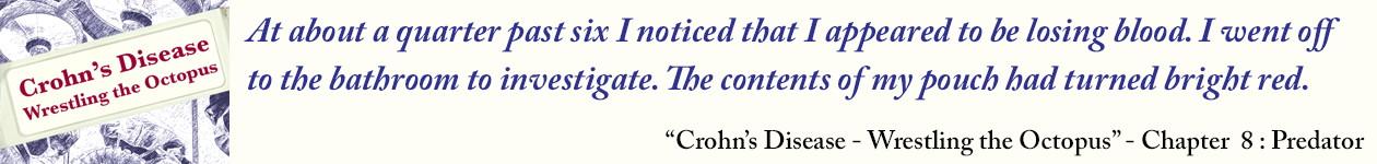 The Crohnoid Blog – Living with Crohn's Disease